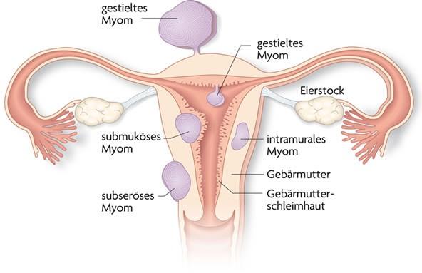 Schwanger mit geschwollener Vagina